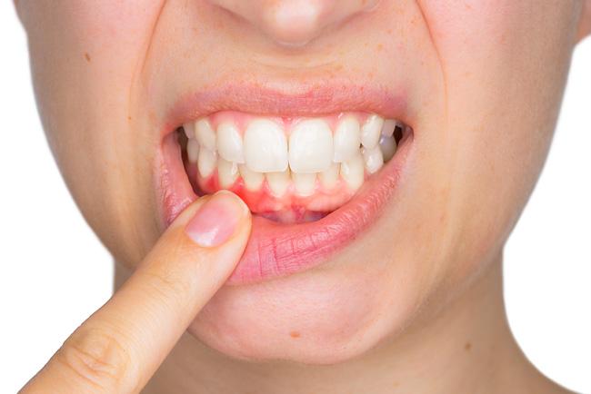 Вокруг зуба белый ободок