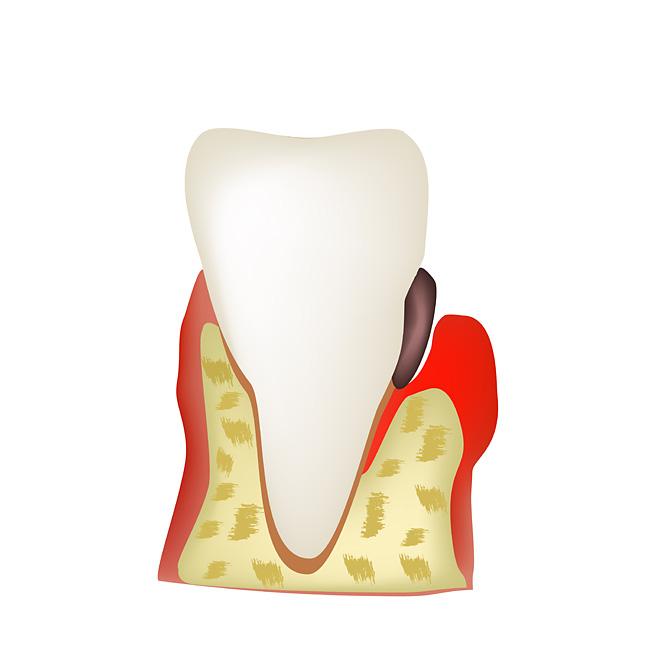 Как вылечить десневой карман между зубами. Карман в десне между зубами — как лечить