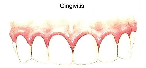 Гингивит у детей – симптомы и особенности лечения