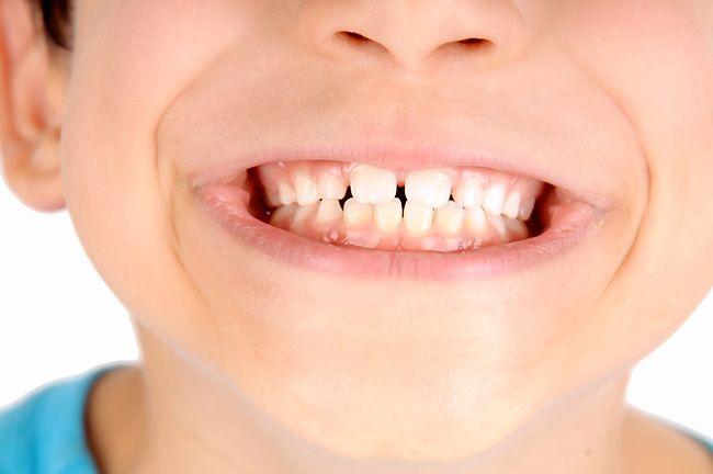 Ксилит для здоровья зубов ребенка