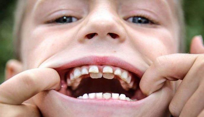 лечить или удалять молочные зубы