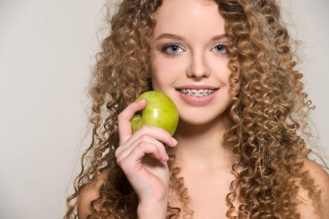 Состояние зубов и десен после ношения брекетов
