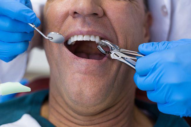 Припухла десна после удаления зуба