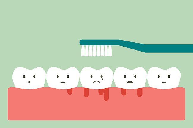 Чем опасен периодонтит молочного зуба, и как избежать встречи с ним
