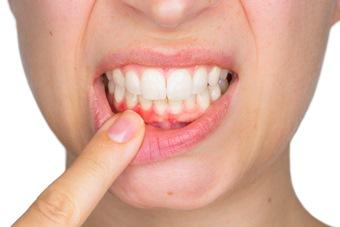 Отбеливание зубов в домашних условиях. Способы 47