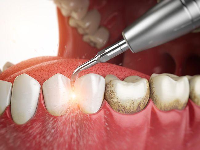 Воспаление десен после профессиональной чистки зубов