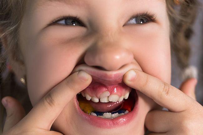 как зубы растут у детей фото
