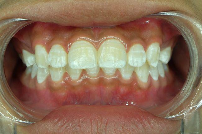 Микроабразия эмали зубов — возвращение эстетики улыбки