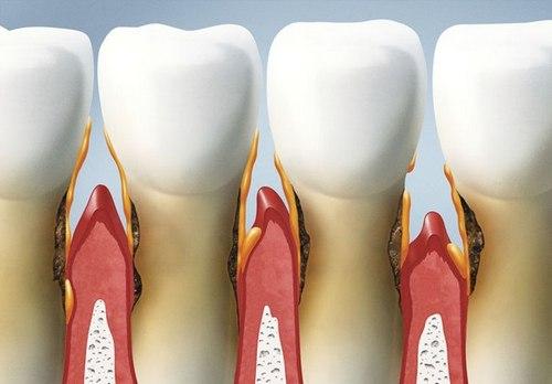parodontoz.jpg