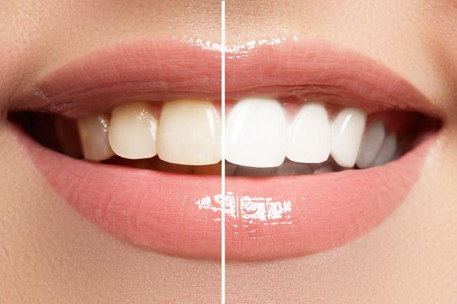 Для отбеливания зубов лак