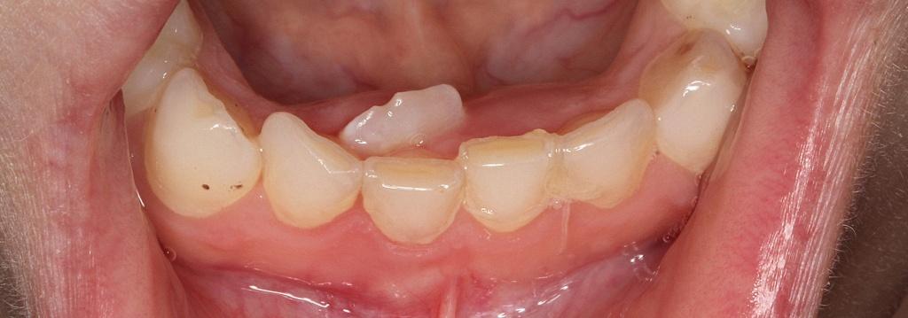 Зуб-растет-вторым-рядом1.jpg