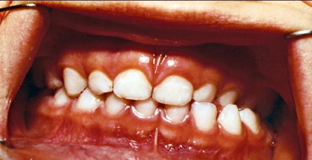 Симптомы гингивита у детей фото