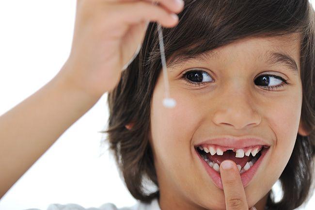 Что делать, если у ребенка шатается молочный зуб