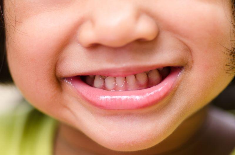Лечение кариеса у двухлетних детей